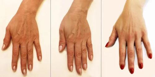 Биоревитализация кистей рук