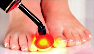 Лечение грибка ногтей и стопы (микоза) лазером