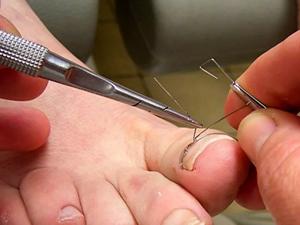 Коррекция вросших ногтей в Королеве