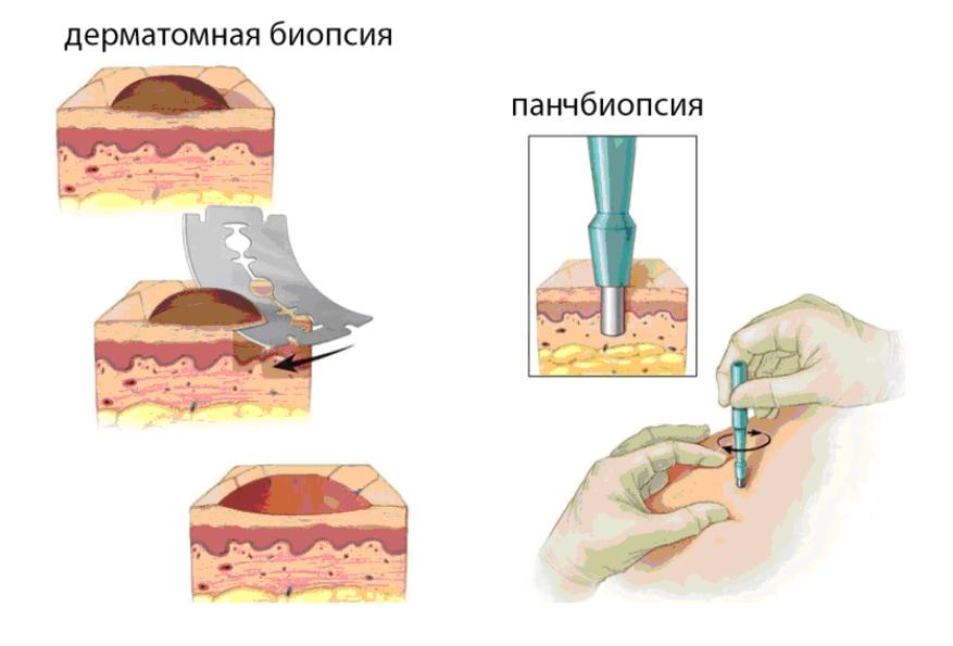 Биопсия кожи в Королеве